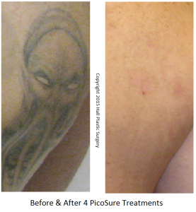 BL Ghost B&A 4 PicoSure Treatments - Austin PicoSure Laser Tattoo Removal