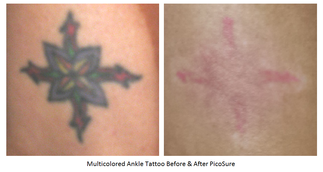 Removal Before & After Photos | AustinPicoSure.com a Tattoo Removal ...