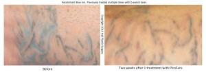 Recalcitrant Blue Ink Before & After 1 Treatment - Hall Plastic Surgery & Rejuvenation Center