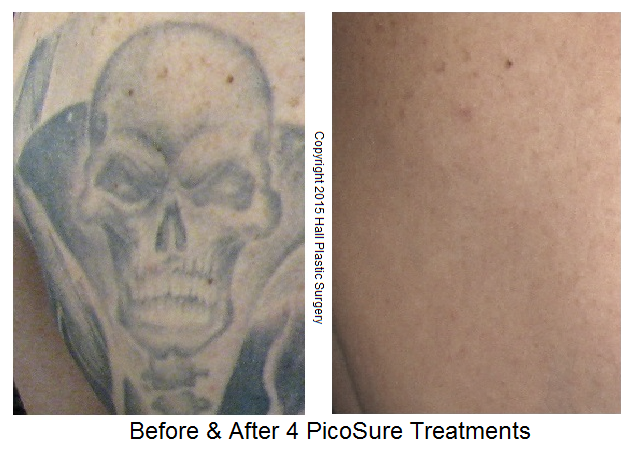 Skull Before & After Side by Side FINAL - Austin PicoSure Laser Tattoo Removal