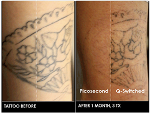 Head to head - Austin PicoSure Laser Tattoo Removal