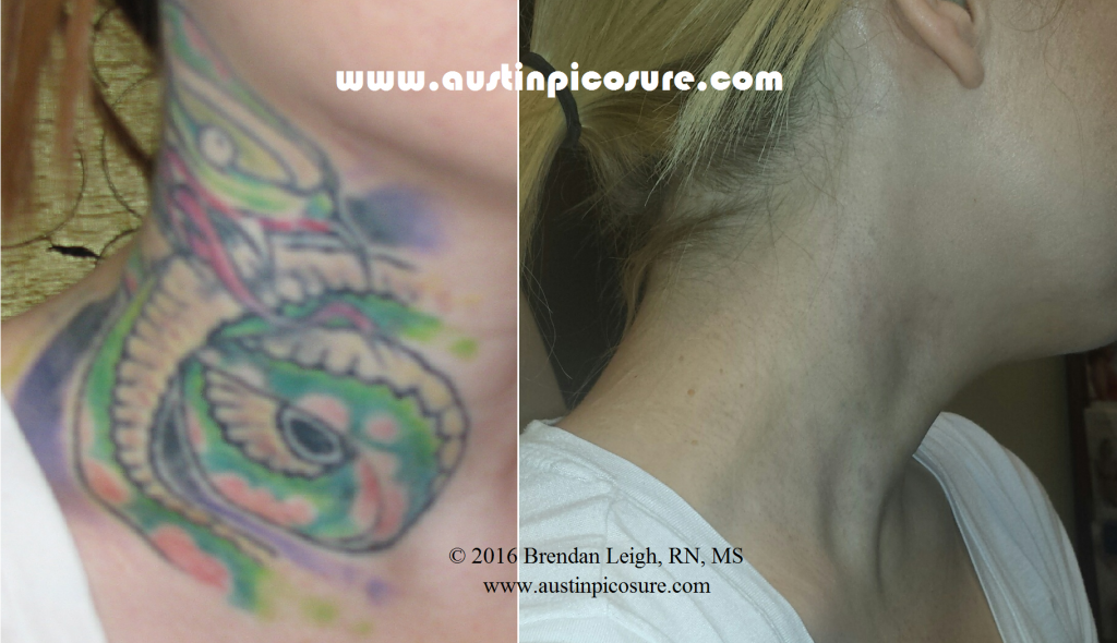 Neck Tattoo Austin PicoSure Laser Tattoo Removal