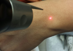 Pointer Austin PicoSure Laser Tattoo Removal