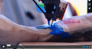 Robot Austin PicoSure Laser Tattoo Removal