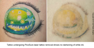 White Ink Austin PicoSure Laser Tattoo Removal