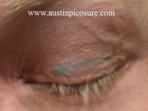 Eyelid Austin PicoSure Laser Tattoo Removal