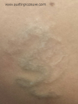 Scarred Tattoo Austin PicoSure Laser Tattoo Removal