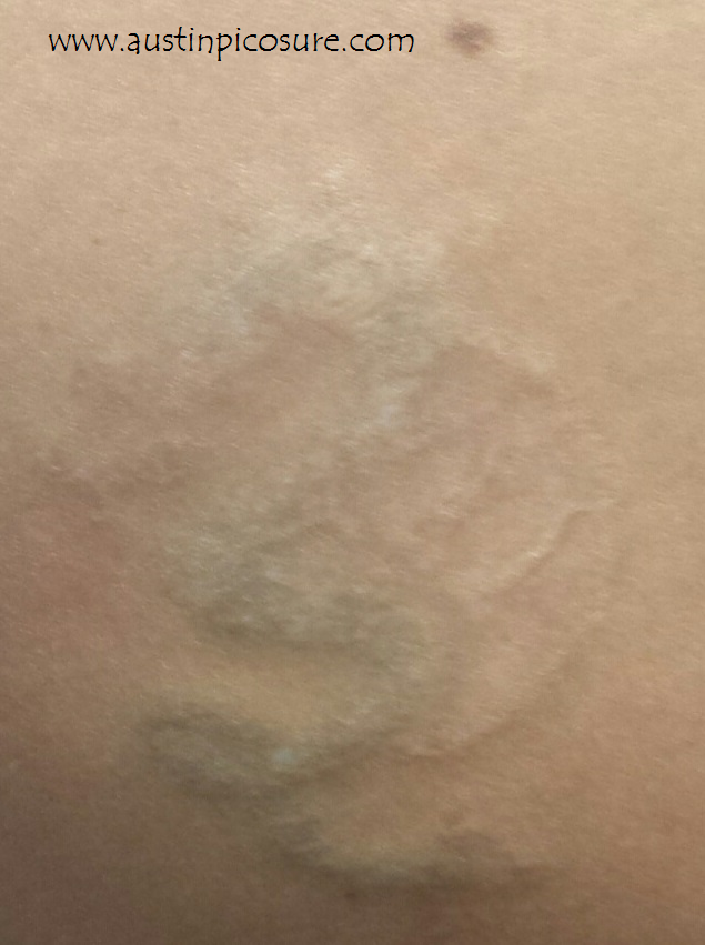 Q Switched Lasers Can Leave Behind Scarred Tattoo Remnants