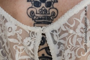 Wedding Austin PicoSure Laser Tattoo Removal