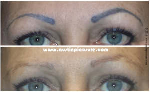 Eyebrows Austin PicoSure Laser Tattoo Removal