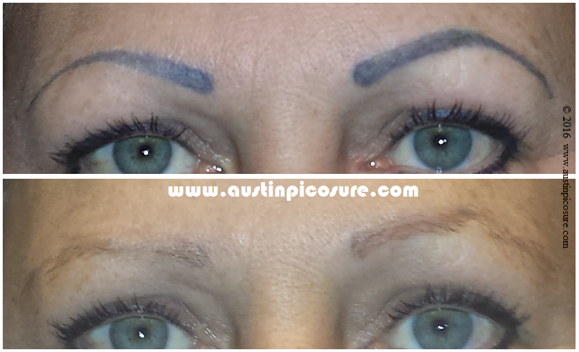 Eyebrow Permanent Makeup Easily Removed Via PicoSure Laser Tattoo ...