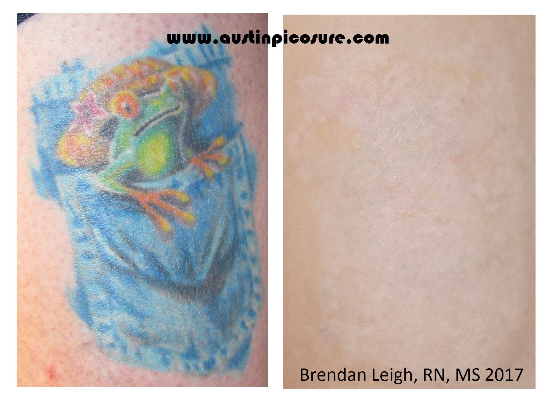 100 tattoo removal cream results top 5 best tattoo for Tattoo removal in queens